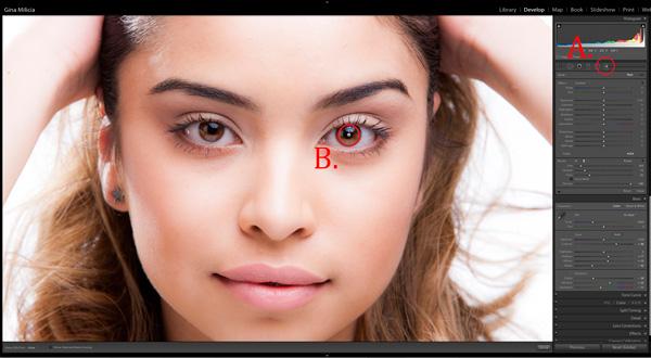 EyesBP 4