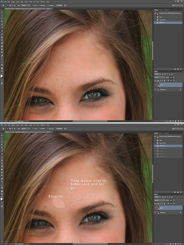 How to Correct Skin Blemishes Using the Patch Tool in Photoshop