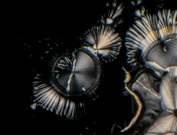 photomicroscopy photomicrograph micrograph